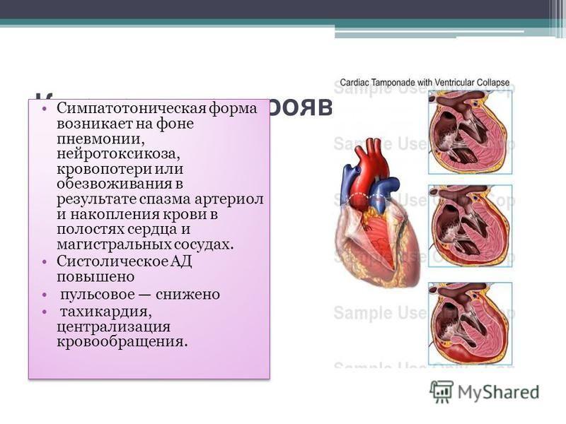 Клинические проявления. Симпатотоническая форма возникает на фоне пневмонии, нейротоксикоза, кровопотери или обезвоживания в результате спазма артериол и накопления крови в полостях сердца и магистральных сосудах. Систолическое АД повышено пульсовое
