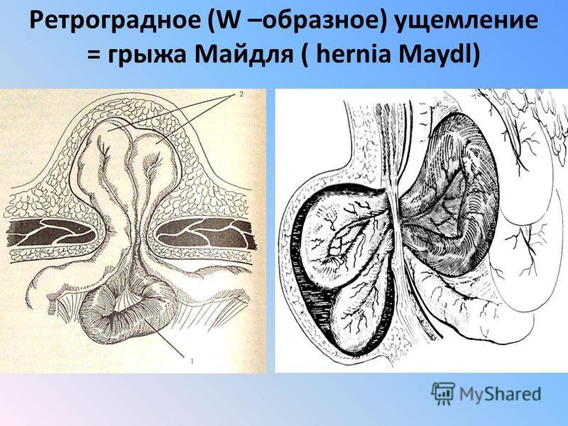 Ретроградное (W –образное) ущемление = грыжа Майдля ( hernia Maydl)