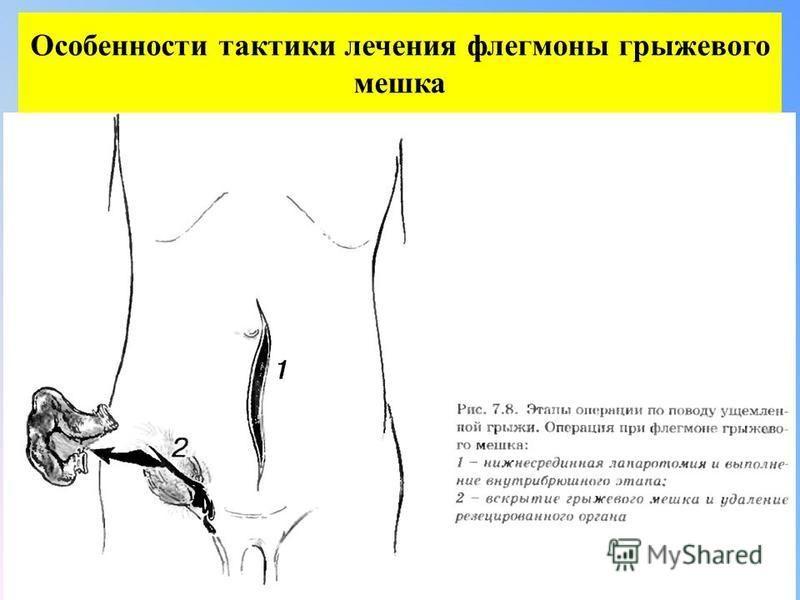 Особенности тактики лечения флегмоны грыжевого мешка