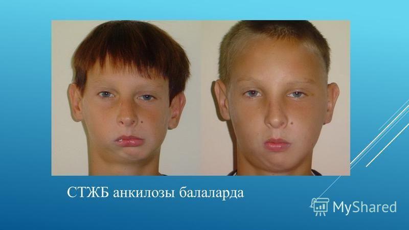 СТЖБ анкилозы балаларда