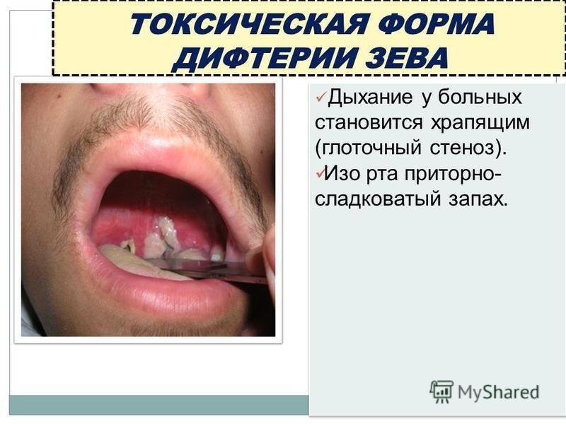 Дыхание у больных становится храпящим (глоточный стеноз). Изо рта приторно- сладковатый запах. Дыхание у больных становится храпящим (глоточный стеноз). Изо рта приторно- сладковатый запах.
