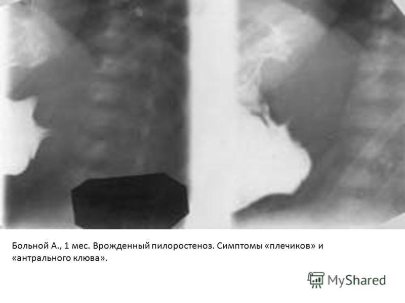 Больной А., 1 мес. Врожденный пилоростеноз. Симптомы «плечиков» и «антрального клюва».