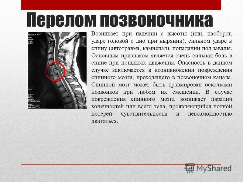 Перелом позвоночника Возникает при падении с высоты (или, наоборот, ударе головой о дно при нырянии), сильном ударе в спину (автотравма, камнепад), попадании под завалы. Основным признаком является очень сильная боль в спине при попытках движения. Оп