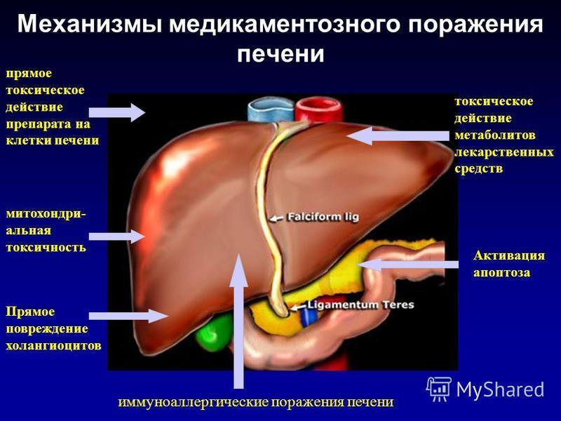 Механизмы медикаментозного поражения печени прямое токсическое действие препарата на клетки печени токсическое действие метаболитов лекарственных средств иммуноаллергические поражения печени митохондриальная токсичность Прямое повреждение холангиоцит