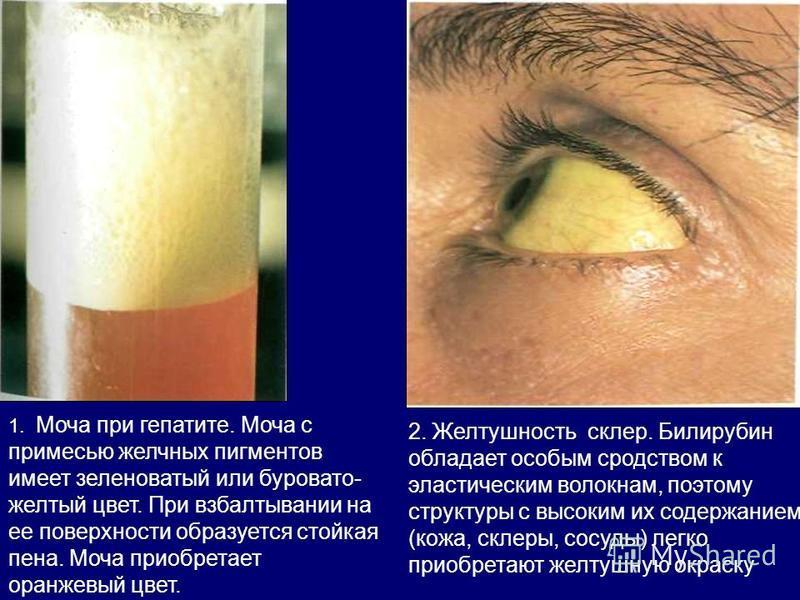 1. Моча при гепатите. Моча с примесью желчных пигментов имеет зеленоватый или буровато- желтый цвет. При взбалтывании на ее поверхности образуется стойкая пена. Моча приобретает оранжевый цвет. 2. Желтушность склер. Билирубин обладает особым сродство