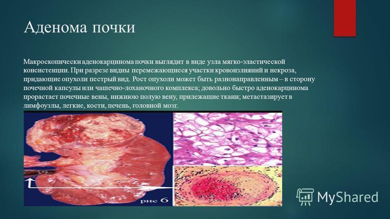 Аденома почки Макроскопически аденокарцинома почки выглядит в виде узла мягко-эластической консистенции. При разрезе видны перемежающиеся участки кровоизлияний и некроза, придающие опухоли пестрый вид. Рост опухоли может быть разнонаправленным – в ст