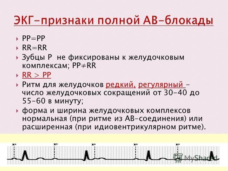 РР=РР RR=RR Зубцы Р не фиксированы к желудочковым комплексам; РРRR RR > РР Ритм для желудочков редкий, регулярный - число желудочковых сокращений от 30-40 до 55-60 в минуту; форма и ширина желудочковых комплексов нормальная (при ритме из АВ-соединени