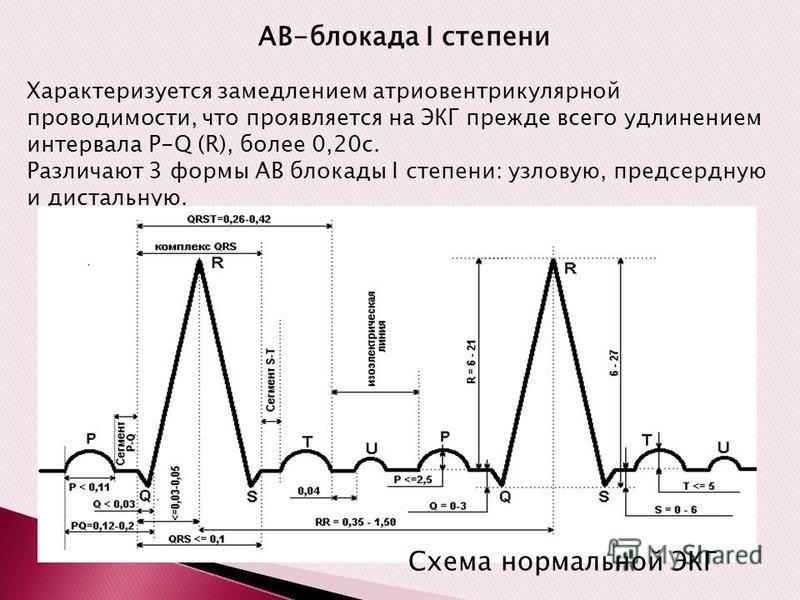 АВ-блокада I степени Характеризуется замедлением атриовентрикулярной проводимости, что проявляется на ЭКГ прежде всего удлинением интервала P-Q (R), более 0,20 с. Различают 3 формы АВ блокады I степени: узловую, предсердную и дистальную. Схема нормал