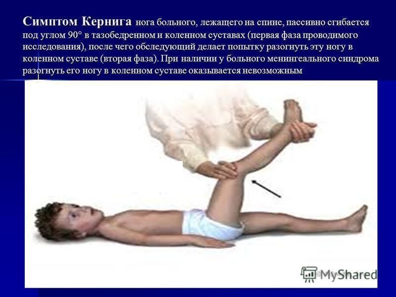 Симптом Кернига нога больного, лежащего на спине, пассивно сгибается под углом 90° в тазобедренном и коленном суставах (первая фаза проводимого исследования), после чего обследующий делает попытку разогнуть эту ногу в коленном суставе (вторая фаза).