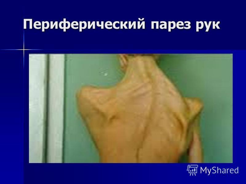 Периферический парез рук Периферический парез рук