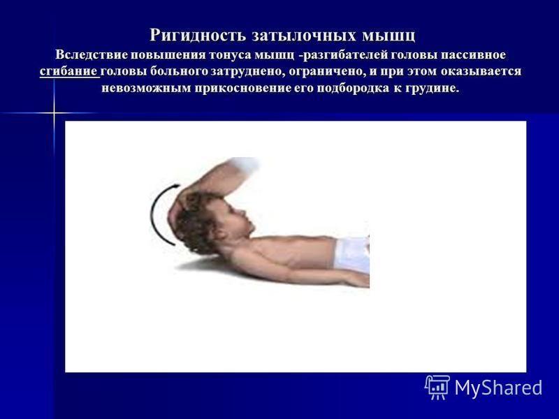 Ригидность затылочных мышц Вследствие повышения тонуса мышц -разгибателей головы пассивное сгибание головы больного затруднено, ограничено, и при этом оказывается невозможным прикосновение его подбородка к грудине. Ригидность затылочных мышц Вследств