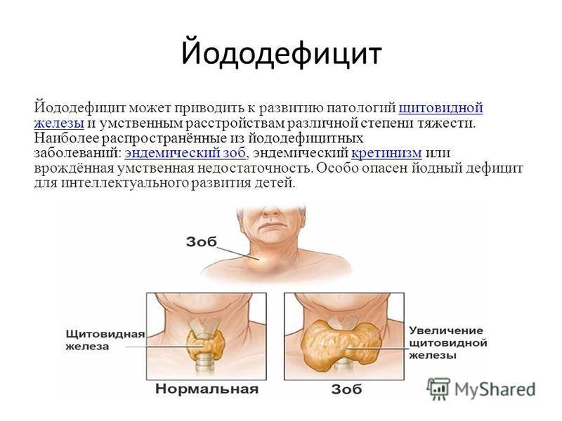 Йододефицит Йододефицит может приводить к развитию патологий щитовидной железы и умственным расстройствам различной степени тяжести. Наиболее распространённые из йоддефицитных заболеваний: эндемический зоб, эндемический кретинизм или врождённая умств