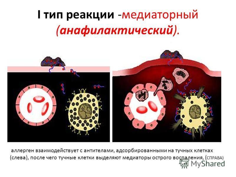 I тип реакции -медиаторный (анафилактический). аллерген взаимодействует с антителами, адсорбированными на тучных клетках (слева), после чего тучные клетки выделяют медиаторы острого воспаления, ( СПРАВА)