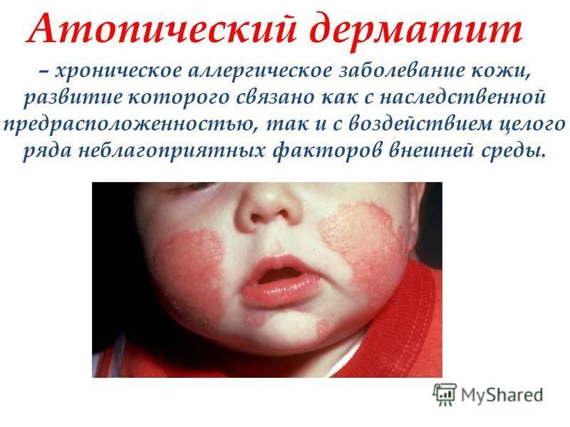 Атопический дерматит – хроническое аллергическое заболевание кожи, развитие которого связано как с наследственной предрасположенностью, так и с воздействием целого ряда неблагоприятных факторов внешней среды.