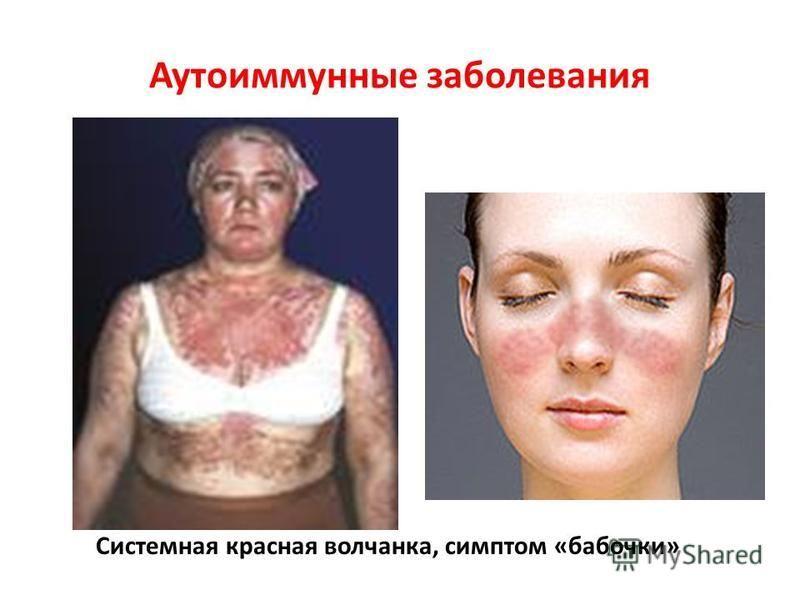 Аутоиммунные заболевания Системная красная волчанка, симптом «бабочки»