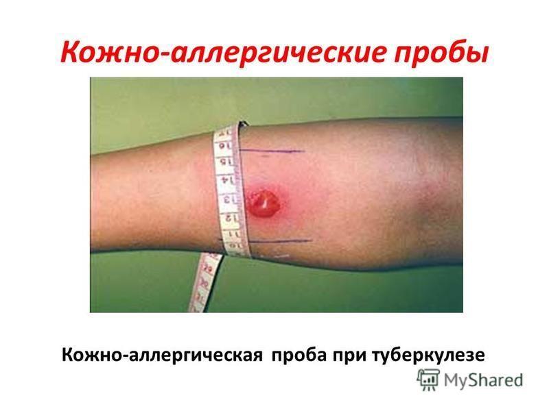 Кожно-аллергические пробы Кожно-аллергическая проба при туберкулезе