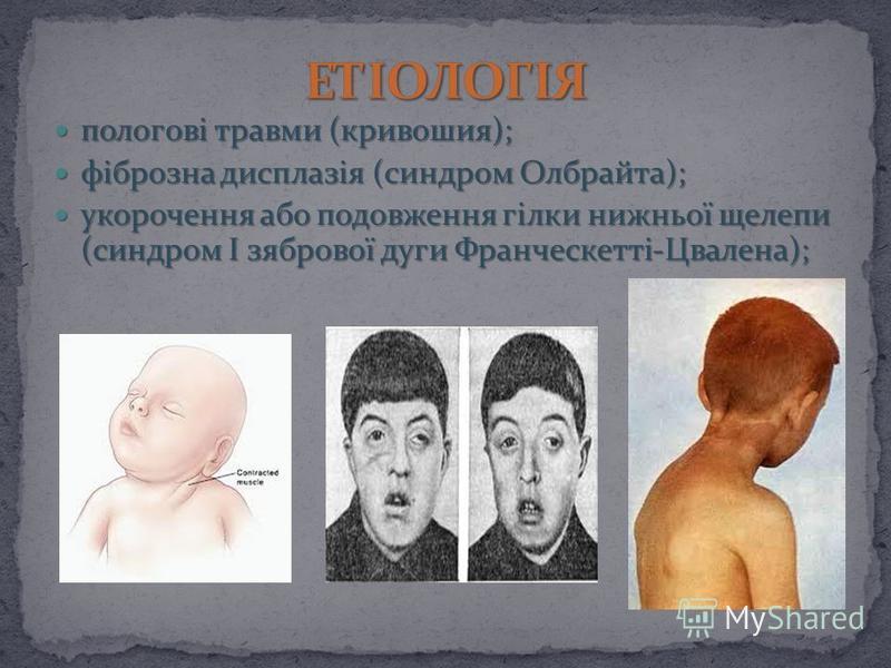 пологoві травми (кривошия); пологoві травми (кривошия); фіброзна дисплазія (синдром Олбрайта); фіброзна дисплазія (синдром Олбрайта); укорочення або подовження гілки нижньої щелепи (синдром І зябрової дуги Франческетті-Цвалена); укорочення або подовж