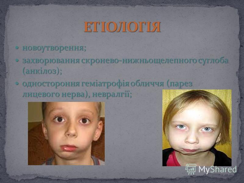 новоутворення; новоутворення; захворювання скронево-нижньощелепного суглоба (анкілоз); захворювання скронево-нижньощелепного суглоба (анкілоз); одностороння геміатрофія обличчя (парез лицeвoгo нерва), невралгії; одностороння геміатрофія обличчя (паре