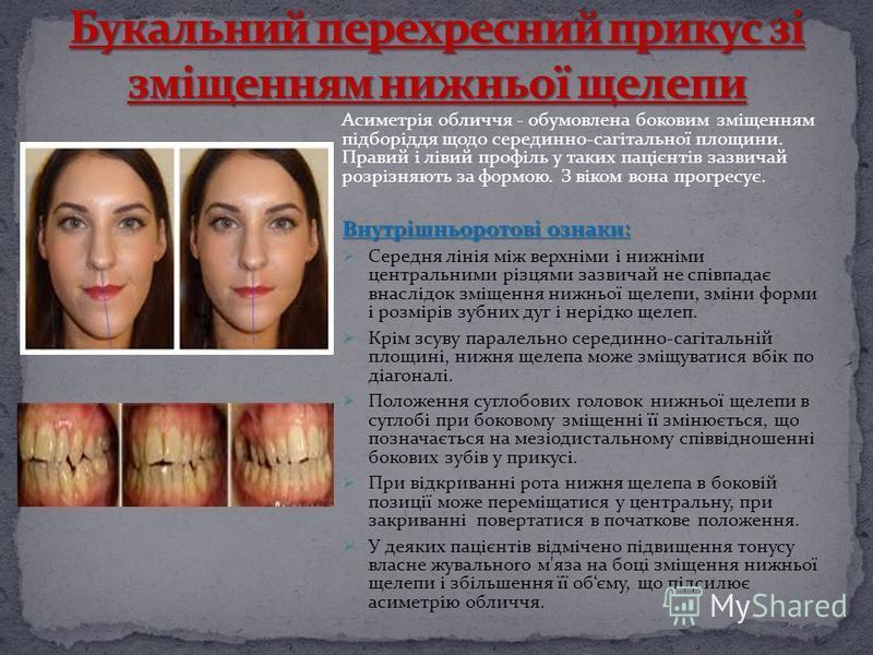 Асиметрія обличчя - обумовлена боковим зміщенням підборіддя щодо серединно-сагітальної площини. Правий і лівий профіль у таких пацієнтів зазвичай розрізняють за формою. З віком вона прогpecyє. Внутрішньоротові ознаки: Середня лінія між верхніми і ниж