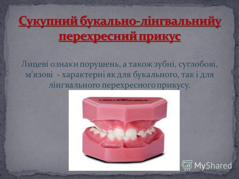 Лицеві ознаки порушень, а також зубні, суглобові, м'язові - характерні як для букальноrо, так і для лінгвальноrо переxpecнoгo прикусу.