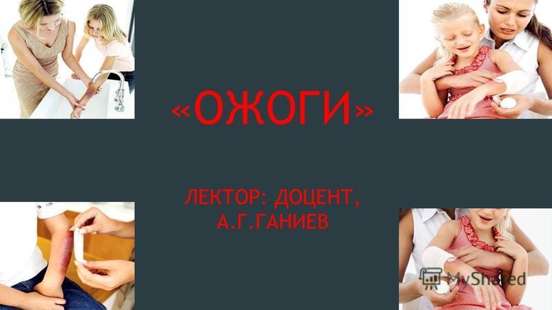 «ОЖОГИ» ЛЕКТОР: ДОЦЕНТ, А.Г.ГАНИЕВ