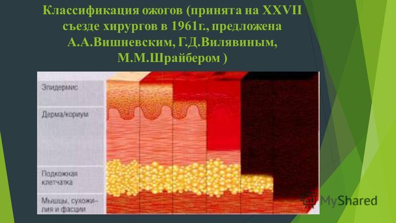 Классификация ожогов (принята на XXVII съезде хирургов в 1961 г., предложена А.А.Вишневским, Г.Д.Вилявиным, М.М.Шрайбером )