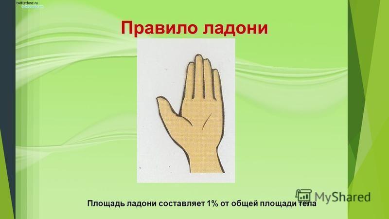 Правило ладони Площадь ладони составляет 1% от общей площади тела