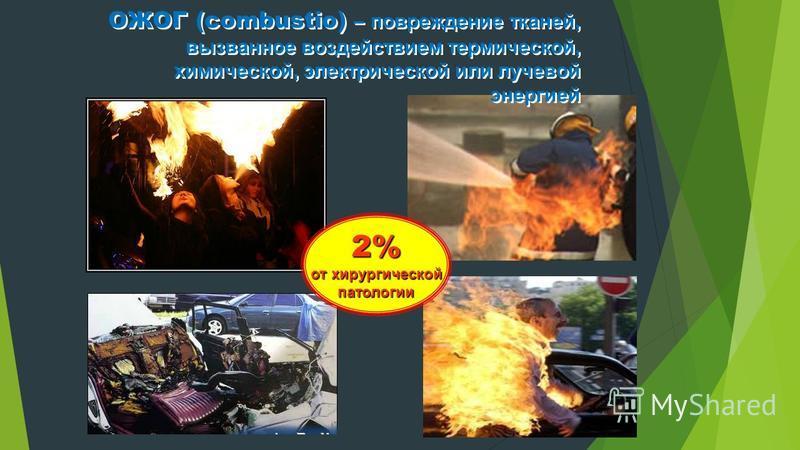 ОЖОГ (combustio) – повреждение тканей, вызванное воздействием термической, химической, электрической или лучевой энергией ОЖОГ (combustio) – повреждение тканей, вызванное воздействием термической, химической, электрической или лучевой энергией 2% от