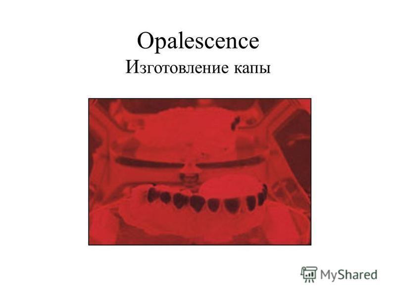 Opalescence И зготовление капы