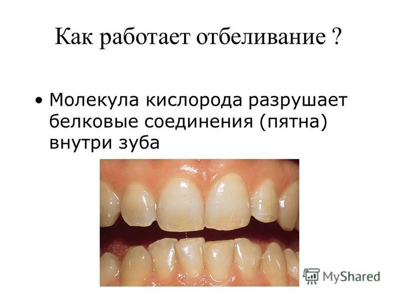 Как работает отбеливание ? Молекула кислорода разрушает белковые соединения (пятна) внутри зуба