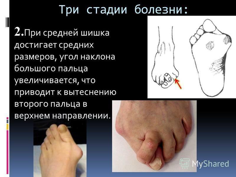 Три стадии болезни: 2. При средней шишка достигает средних размеров, угол наклона большого пальца увеличивается, что приводит к вытеснению второго пальца в верхнем направлении.