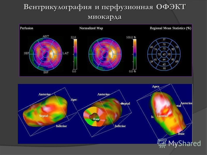 Вентрикулография и перфузионная ОФЭКТ миокарда