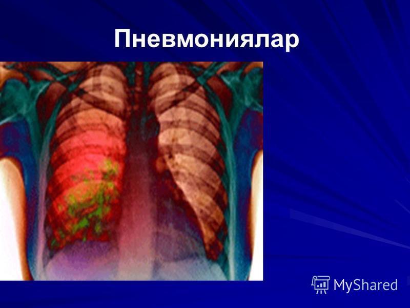 Пневмониялар