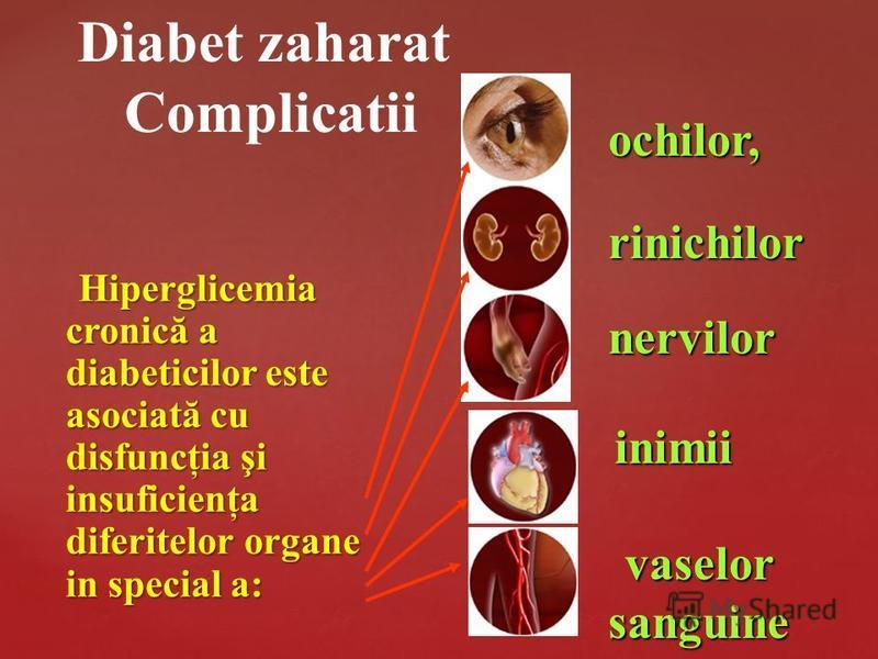 Hiperglicemia cronică a diabeticilor este asociată cu disfuncţia şi insuficienţa diferitelor organe in special a: Hiperglicemia cronică a diabeticilor este asociată cu disfuncţia şi insuficienţa diferitelor organe in special a: ochilor, rinichilor ne