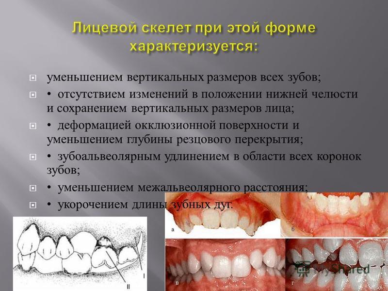уменьшением вертикальных размеров всех зубов ; отсутствием изменений в положении нижней челюсти и сохранением вертикальных размеров лица ; деформацией окклюзионной поверхности и уменьшением глубины резцового перекрытия ; зубоальвеолярным удлинением в