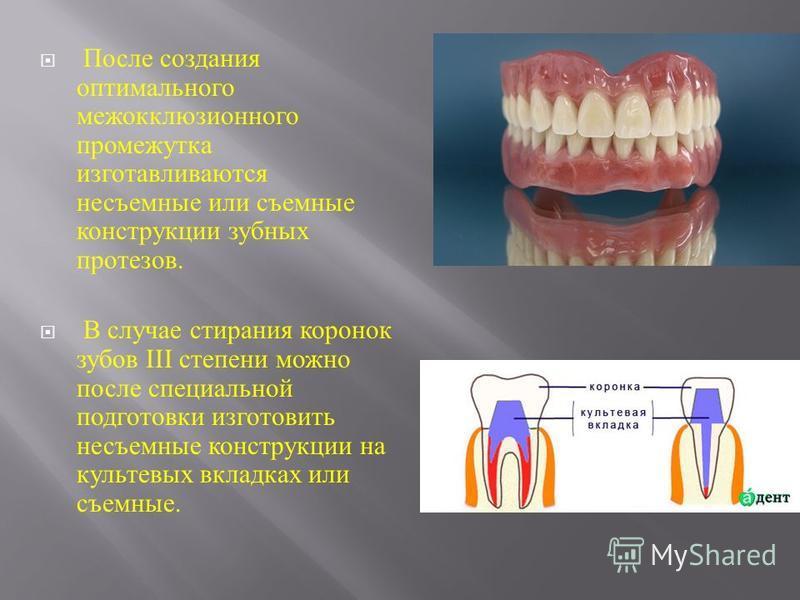 После создания оптимального межокклюзионного промежутка изготавливаются несъемные или съемные конструкции зубных протезов. В случае стирания коронок зубов III степени можно после специальной подготовки изготовить несъемные конструкции на культевых вк