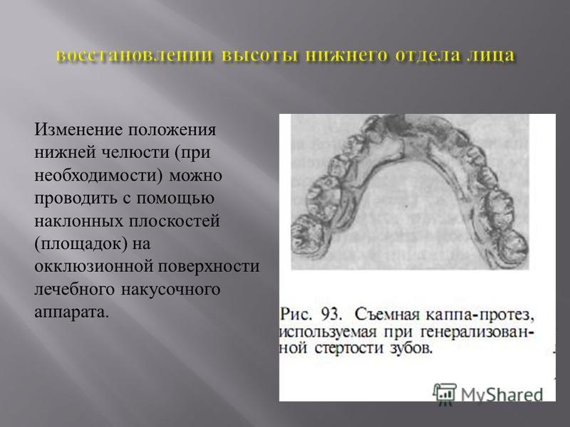 Изменение положения нижней челюсти ( при необходимости ) можно проводить с помощью наклонных плоскостей ( площадок ) на окклюзионной поверхности лечебного накусочного аппарата.