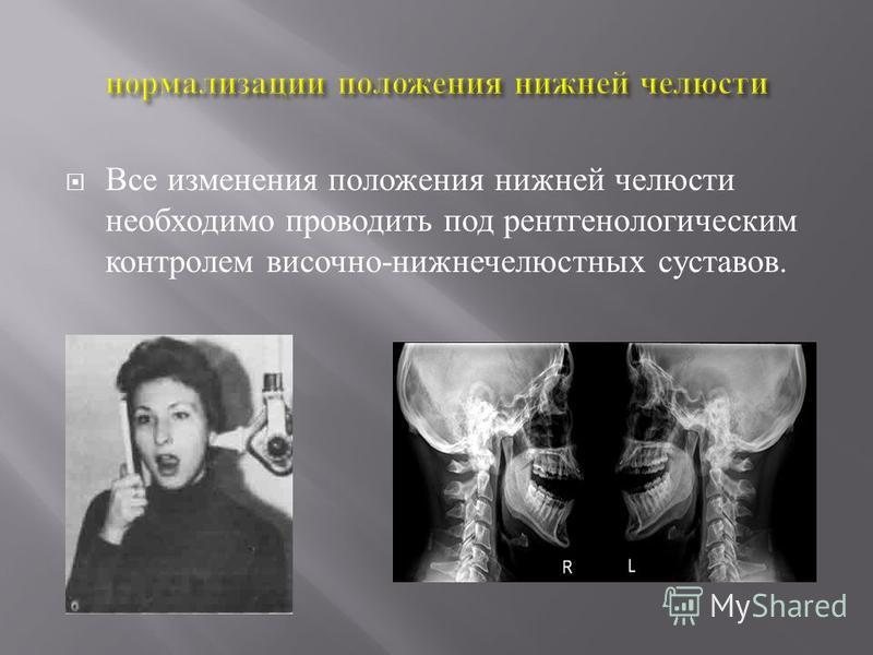 Все изменения положения нижней челюсти необходимо проводить под рентгенологическим контролем височно - нижнечелюстных суставов.