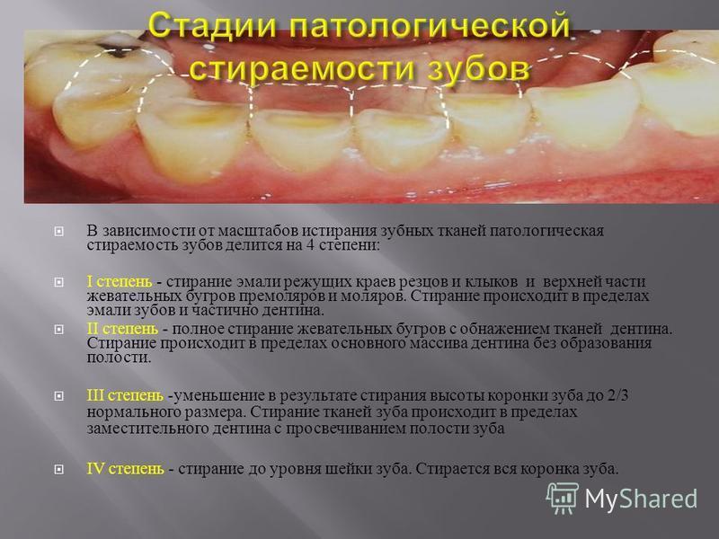 В зависимости от масштабов истирания зубных тканей патологическая стираемость зубов делится на 4 степени : I степень - стирание эмали режущих краев резцов и клыков и верхней части жевательных бугров премоляров и моляров. Стирание происходит в предела