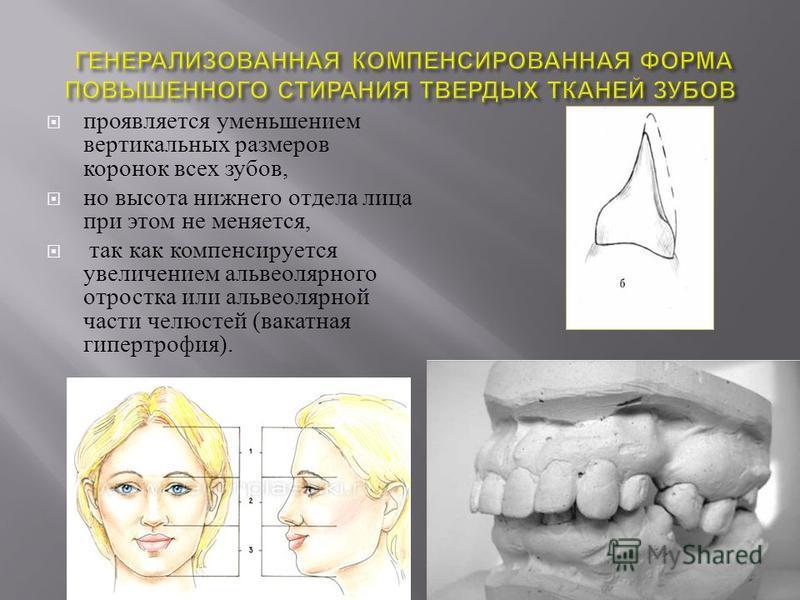 проявляется уменьшением вертикальных размеров коронок всех зубов, но высота нижнего отдела лица при этом не меняется, так как компенсируется увеличением альвеолярного отростка или альвеолярной части челюстей ( вакатная гипертрофия ).