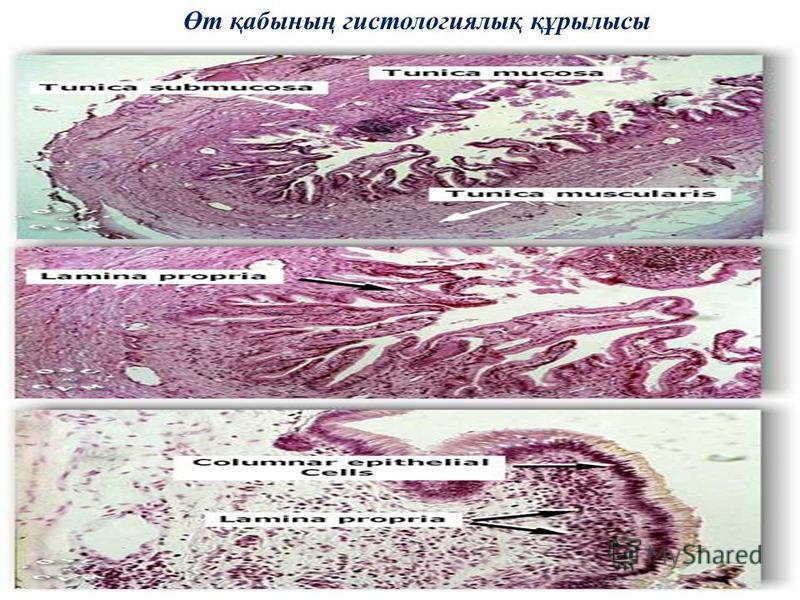 Өт қабының гистологиялық құрылысы