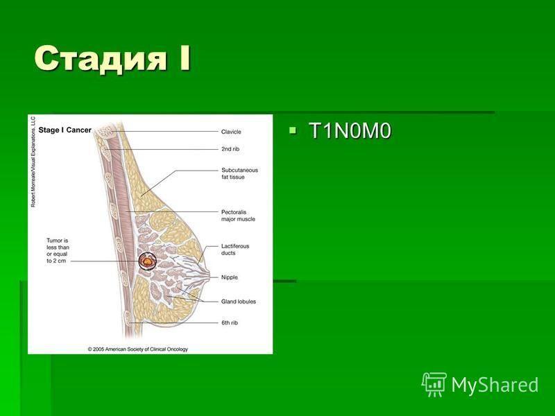Стадия I T1N0M0 T1N0M0