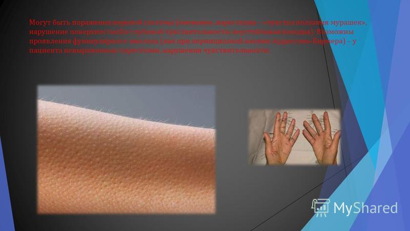 Могут быть поражения нервной системы ( онемение, парестезии – « чувство ползания мурашек », нарушение поверхностной и глубокой чувствительности, неустойчивая походка ). Возможны проявления фуникулярного миелоза ( как при пернициозной анемии Аддиссона
