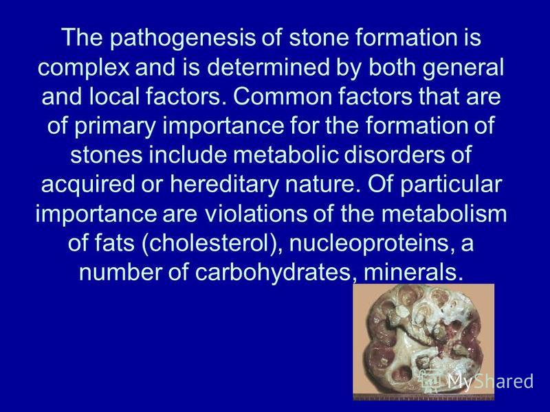 The pathogenesis of stone formation is complex and is determined by both general and local factors. Common factors that are of primary importance for the formation of stones include metabolic disorders of acquired or hereditary nature. Of particular
