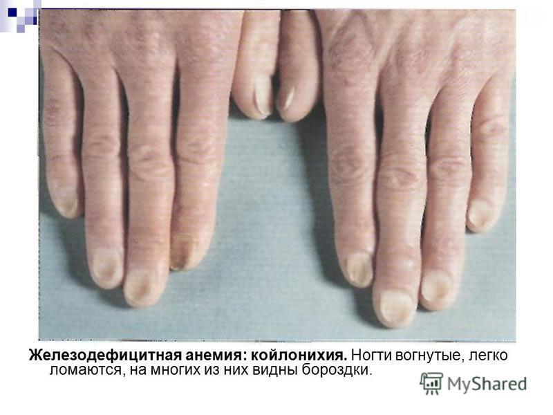 Железодефицитная анемия: койлонихия. Ногти вогнутые, легко ломаются, на многих из них видны бороздки.