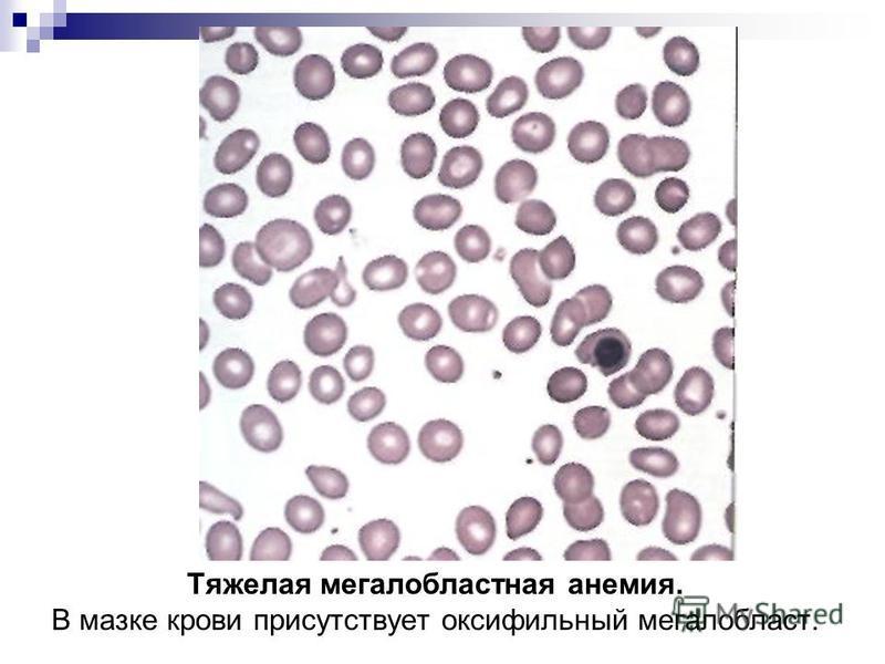 Тяжелая мегалобластная анемия. В мазке крови присутствует оксифильный мегалобласт.