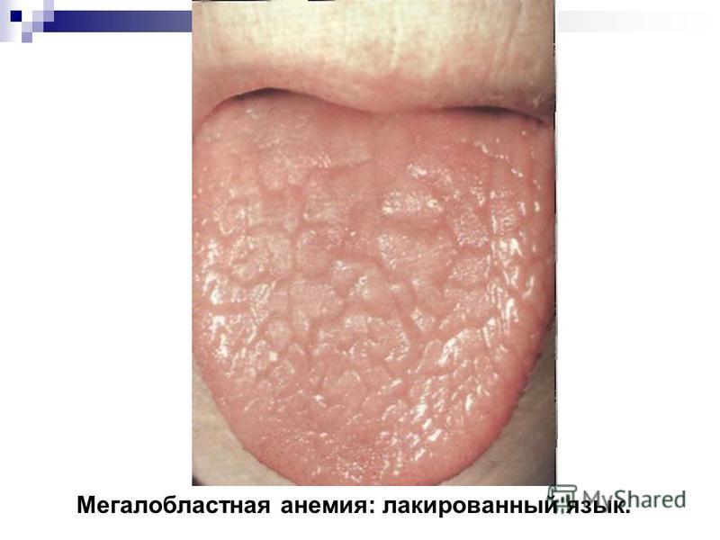 Мегалобластная анемия: лакированный язык.