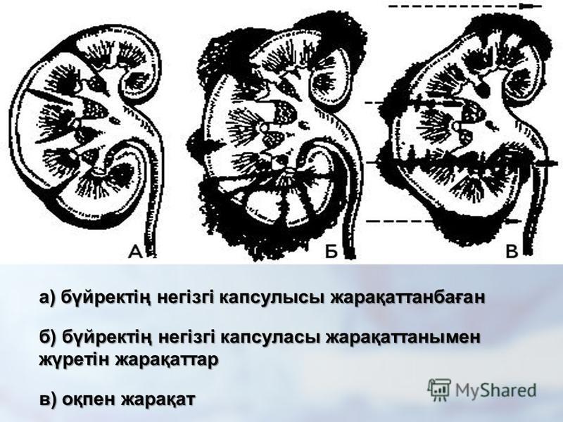 а) бүиректің негізгі капсулы жарақатанбаған б) бүиректің негізгі капсулы жарақатанымен жүретін жарақатар в) оқпен жарақат