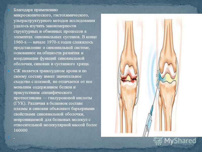 Благодаря применению микроскопического, гистохимического, ультраструктурного методов исследования удалось изучить закономерности структурных и обменных процессов в элементах синовиальных суставов. В конце 1960-х начале 1970-х годов сложилось представ
