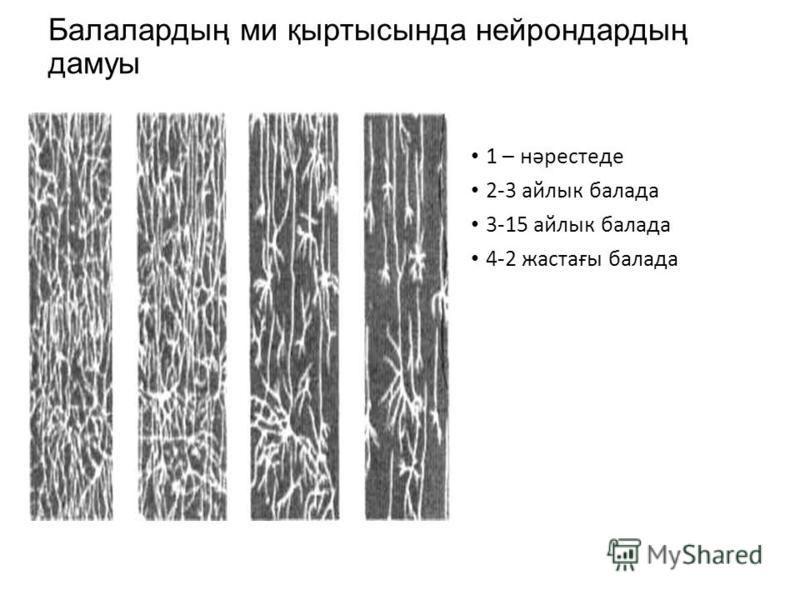 Балалардың ми қыртысында нейрон дардың дамуы 1 – нәрестеде 2-3 айлык баллада 3-15 айлык баллада 4-2 жастағы баллада